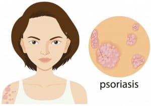 Castor Oil For Psoriasis